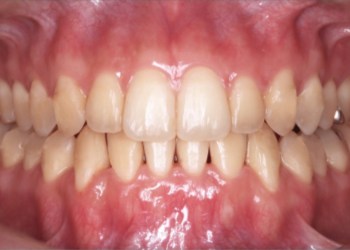 invisalign-after-4