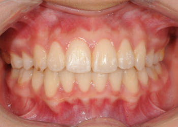 invisalign-after-6