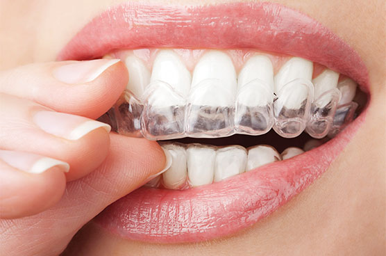 invisalign-boost-confidence