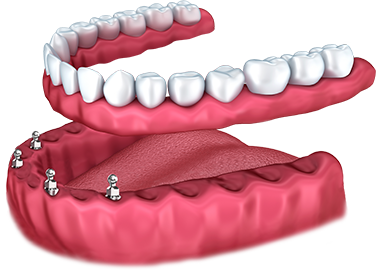 more-dental-implants